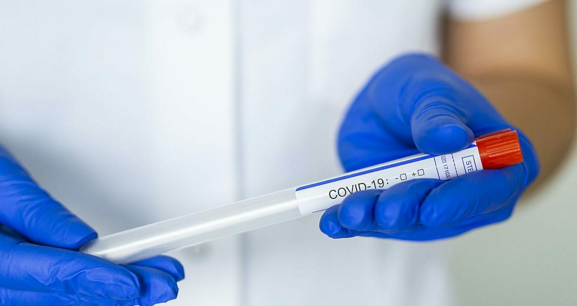 Moldova Reports 380 New Cases of Coronavirus