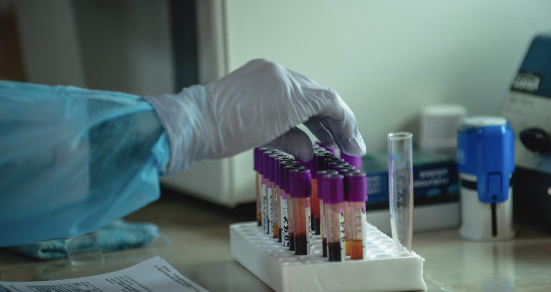 Moldova Reports 560 New Cases of Coronavirus