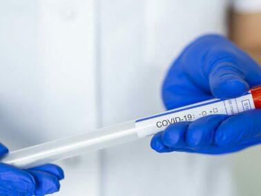 Moldova Reports 380 New Cases of Coronavirus