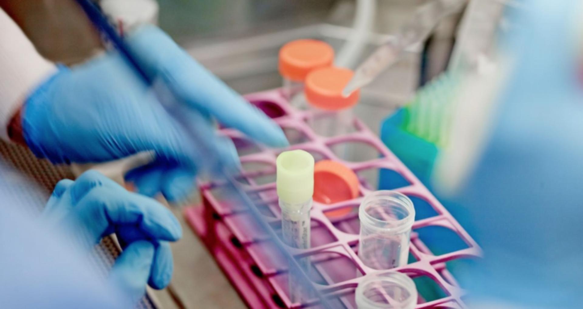 Cum sunt selectați pacienții din R. Moldova pentru a fi testați pentru coronavirus. Testele sunt gratuite și deținute doar de o singură instituție de stat