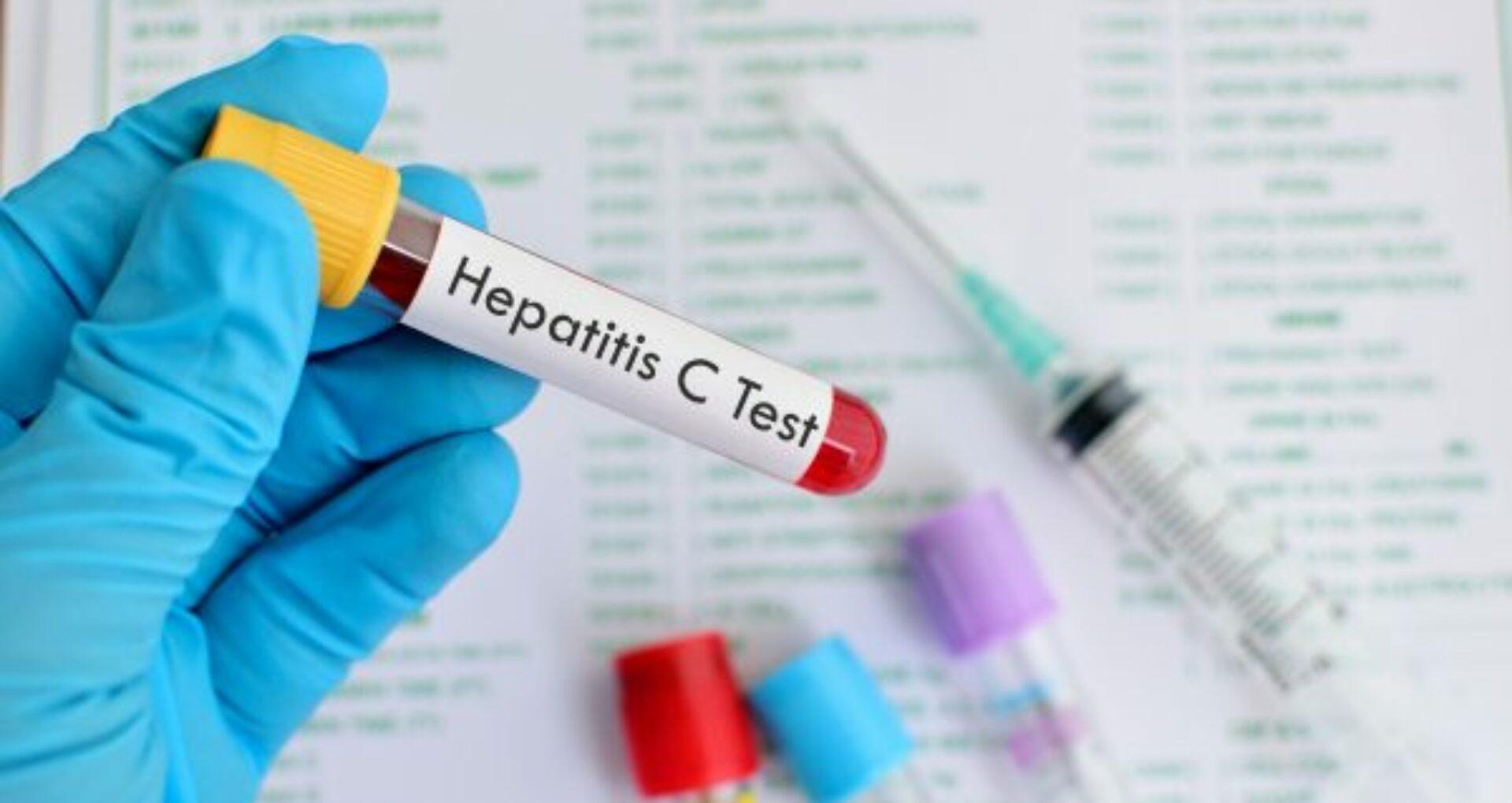 În R. Moldova a fost lansată testarea de screening la hepatitele virale B și C cu Teste Rapide de Diagnostic