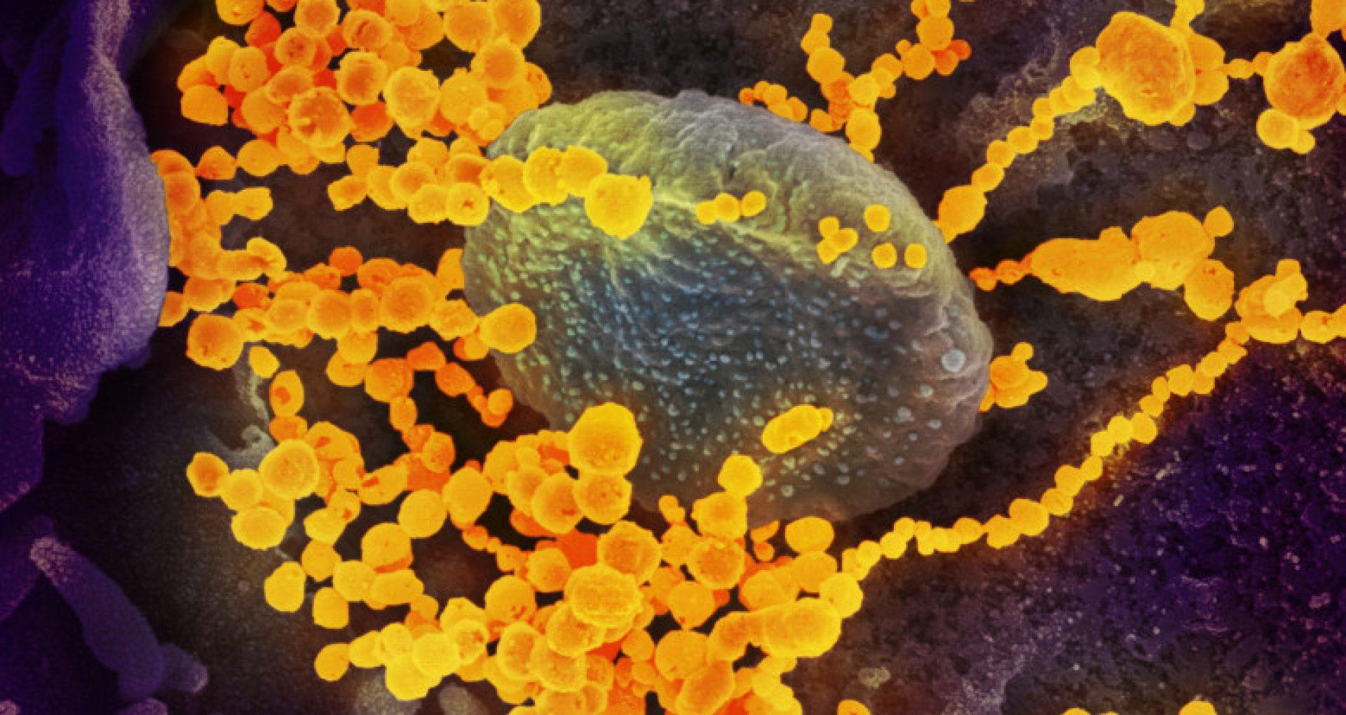 România: Peste 2.400 de cazuri noi de coronavirus în ultimele 24 de ore