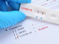 COVID-19 în R. Moldova: 14 decese și 213 cazuri noi de îmbolnăvire cu COVID, înregistrate în ultimele 24 de ore