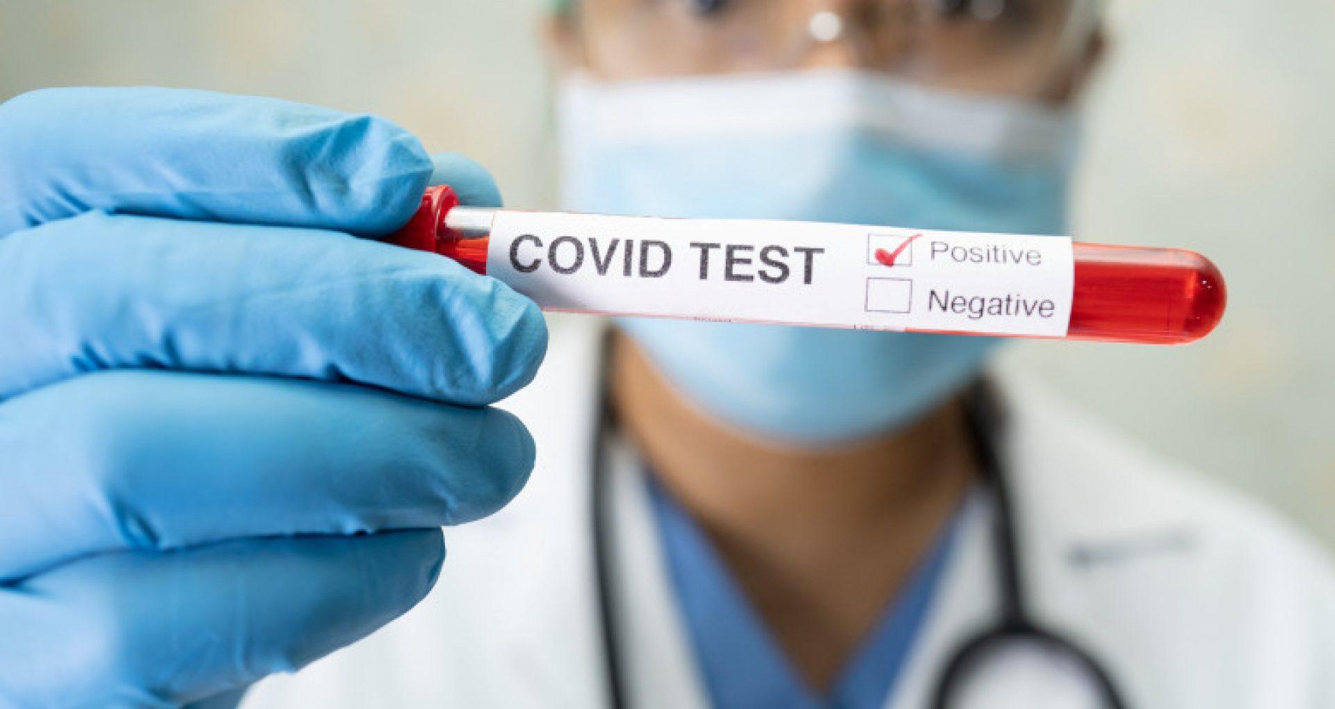 ULTIMA ORĂ/ 2052 de cazuri de COVID-19 și 29 decese, confirmate în ultimele 24 de ore